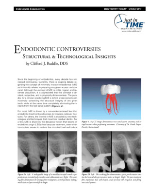 Endo Controversies: Structural & Technical Insights