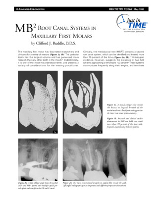 MB2 Root Canal Systems in Maxillary First Molars