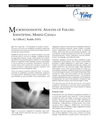 Microendodontic Analysis of Failure: Identifying Missed Canals