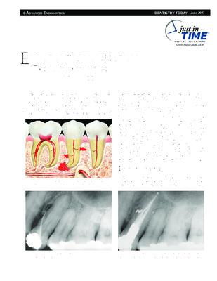 """Endodontic Disinfection: The Sonic Advantage"""