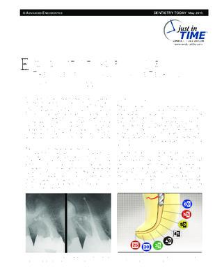 """""""Endodontic Triad for Success"""""""