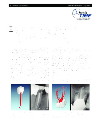 """Endodontic Canal Preparation"""